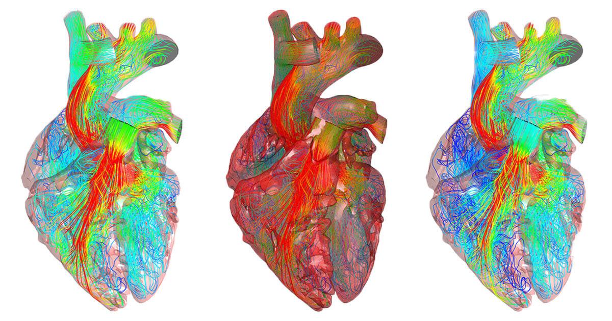 flowvision-heart